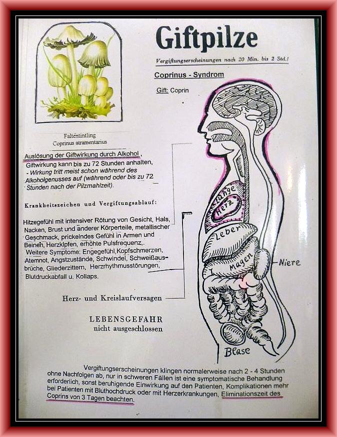 Gruppe 7: Coprinus - Syndrom. Unangenheme Reaktionen im Zusammenspiel mit Alkohol. Bei gesunden Menschen keine Lebensgefahr.