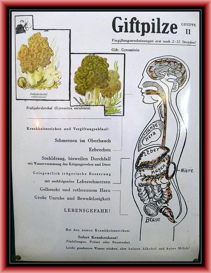 Gruppe 2 Gyromitrin - Syndrom. Hitze labile Gifte, daher Giftwirkung schwach bis tödlich. Lebensgefahr also möglich!