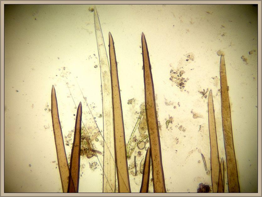Hier die bis zu 1000qm langen Wimpernhaare in starker Vergrößerung. Foto: Christopher Engelhardt.