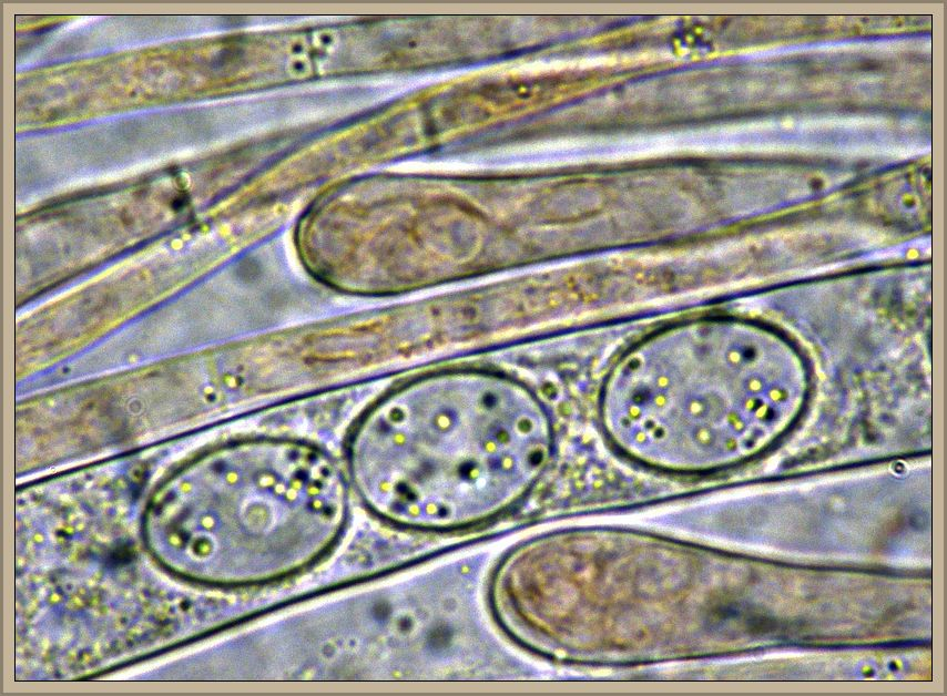 Unter dem Mikroskop sind die artypischen, nicht grobwarzigen Sporen und keuligen Praphysenenden der schönen Art gut zu erkennen..
