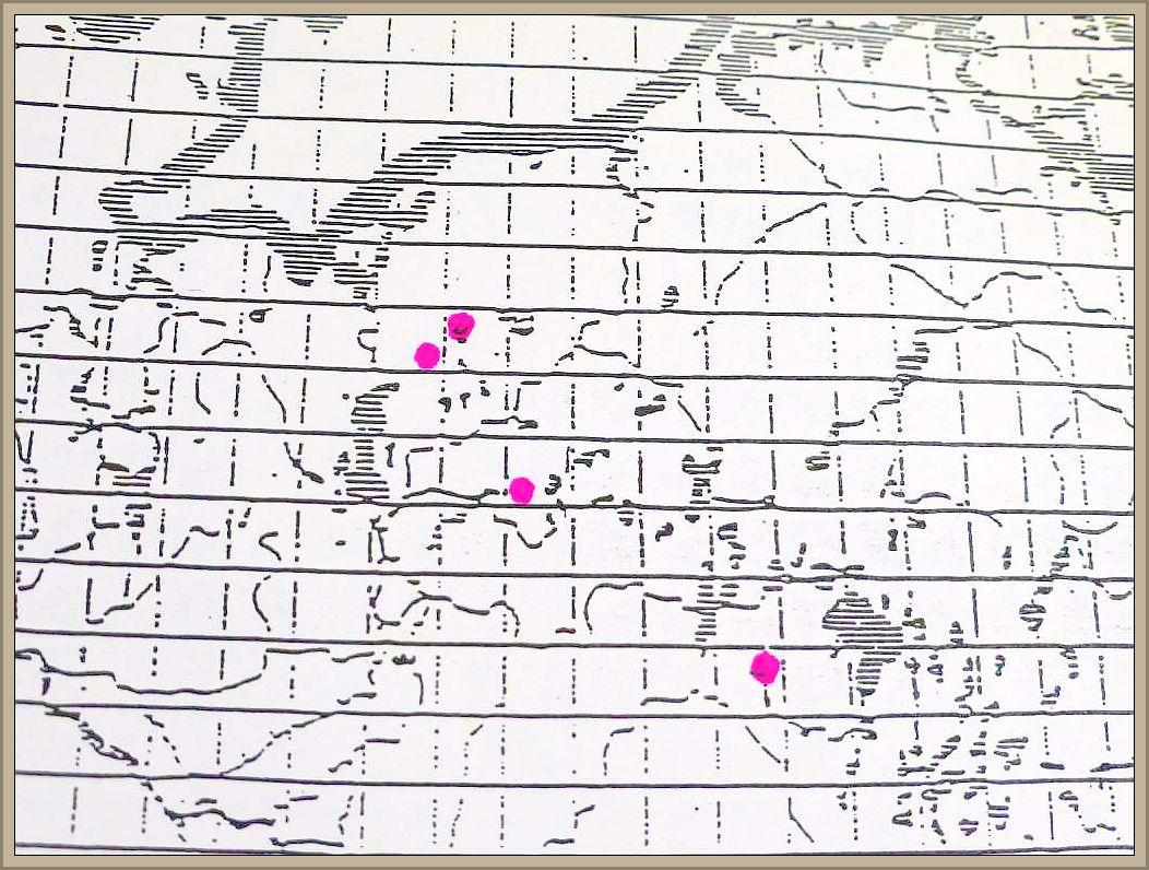 Camarops polysperma (Mont.) J. H. Hiller