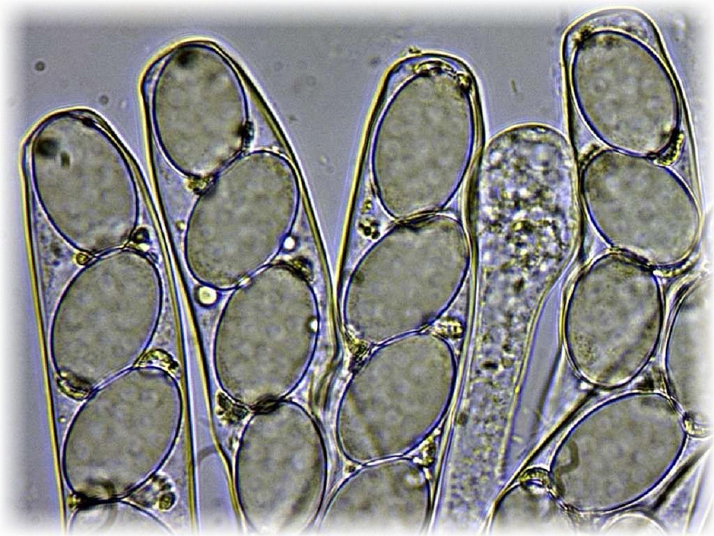 Käppchenmorcheln gehören (wie alle Morcheln) zu den Ascomyzeten, dh. Schlauchpilzen, weil sie ihre Sporen in Asci = Schläuchen ausbilden. Hier sieht man einige Asci mit Sporen darin. Zwischen dem dritten und vierten Sporenschlauch befindet sich eine keulig verdickte Paraphyse. Die Sporen der Käppchenmorchel sind um die 22-24 mal 13 - 15 Mikromilimeter groß. Als Besonderheit haben sie meist einige kleine Öltröpfchen außen an beiden Enden der Sporenwand, was man auf dem Foto von Christopher Engelhardt gut sehen kann.