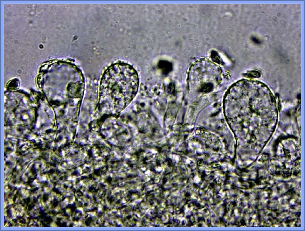Hier noch ein Mikofoto von Christopher. Es zeigt die dick aufgeblasenen und stacheligen Cheilocystiden die in der Huthaut von Mycena matata reichlich zu finden sind und überhaupt nicht zu M. strobilicola passen würden, so Christopher Engelhardt.