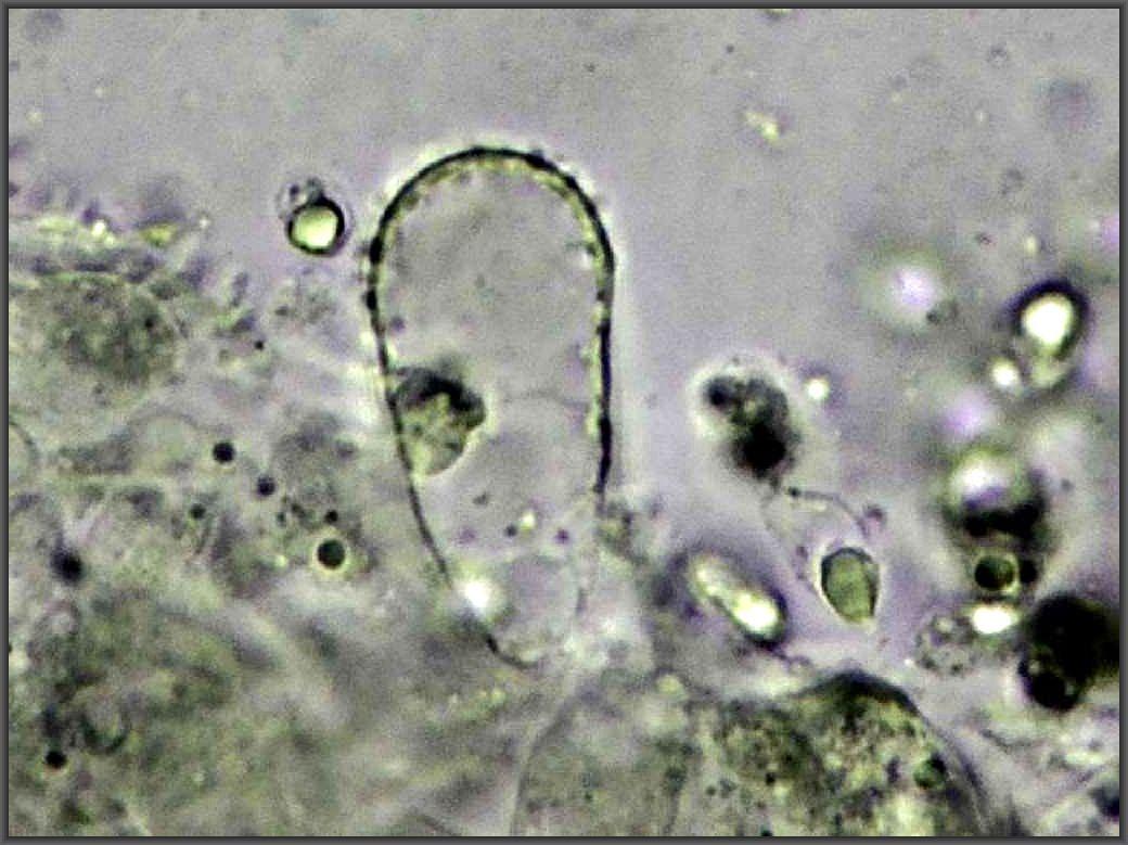 Hier sehe wir eine seiner charakteristischen, aufgeblasenen Cheilo - Zystiden, die wir auf der Huthaut finden. Foto: C. Engelhardt.
